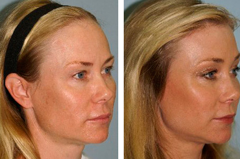 Hair line lowering surgery